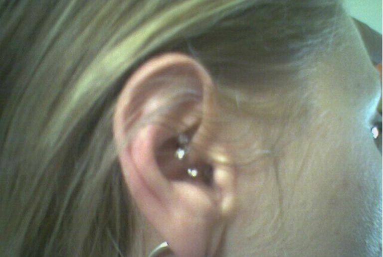 All You Need To Know About Daith Piercings