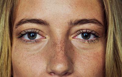 What Causes Dark Under-Eye Circles?