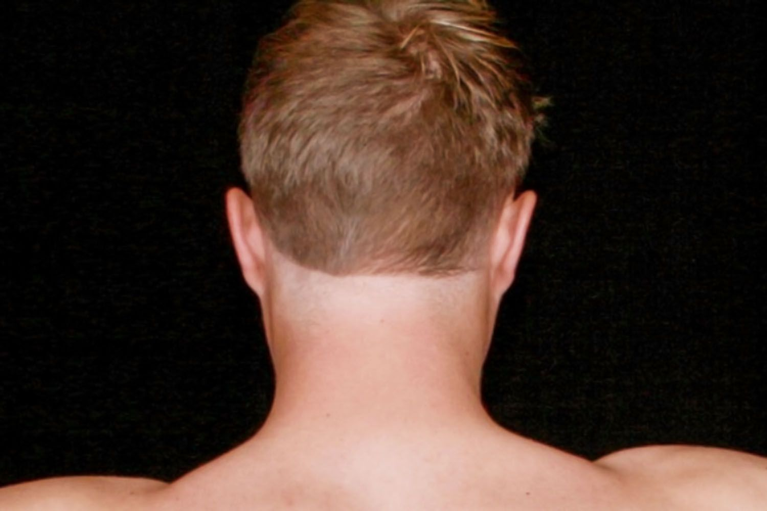 Man with hair shaved too high on neck
