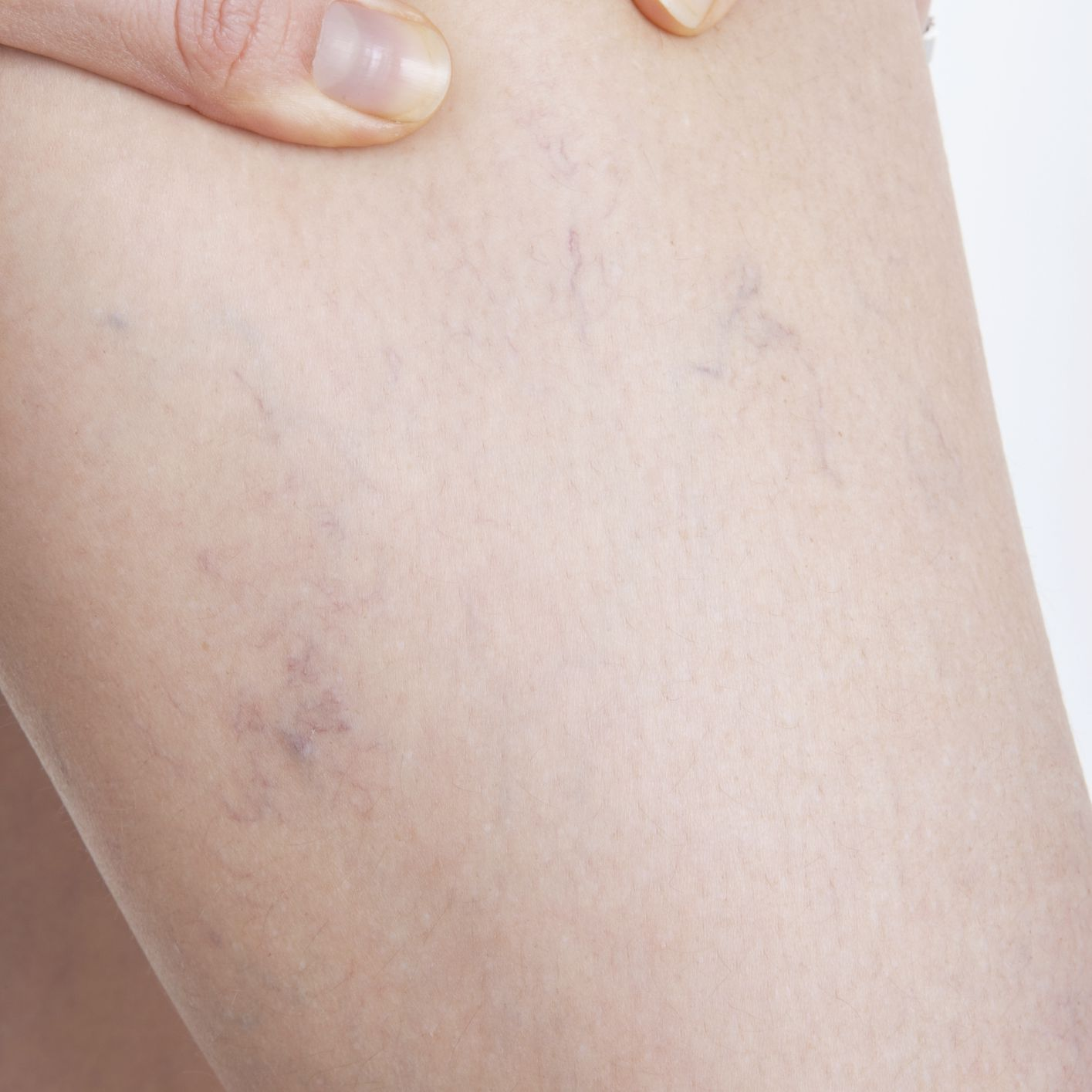 Woman with spider veins