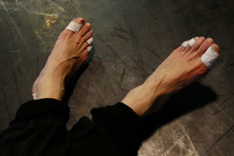 ingrown toenails of a dancer