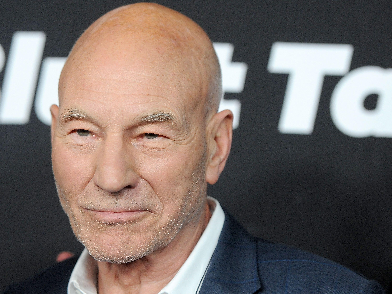 Going head weird bald shaped Celebrities Who