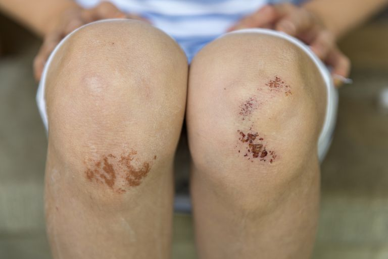 Girl with knee abrasions.