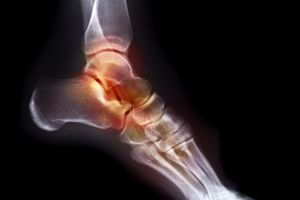 X-Ray for foot pain