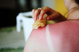 Folk remedies for sunburn