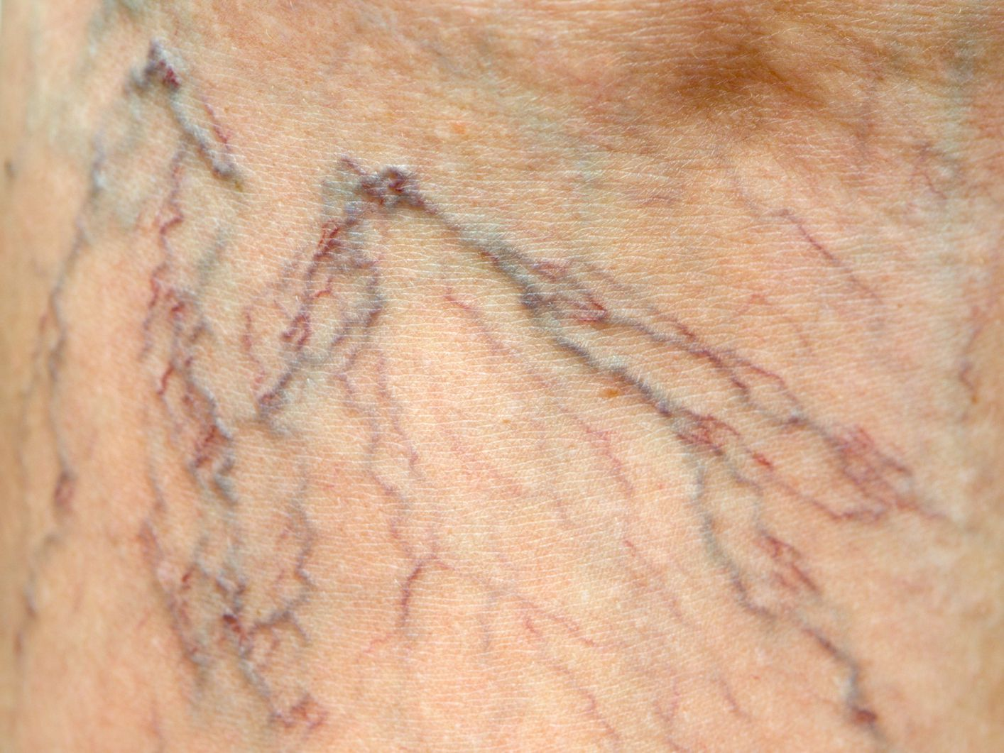 How To Hide Varicose Veins