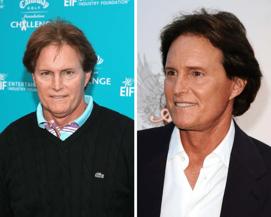 Two Faces of Bruce Jenner