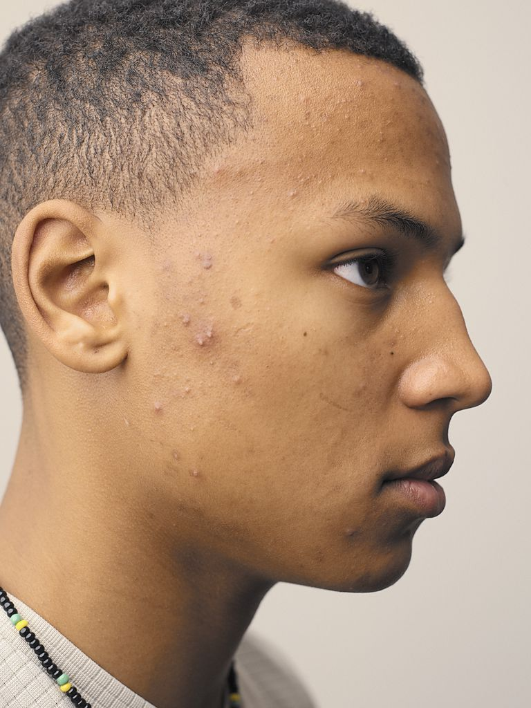 Man with acne